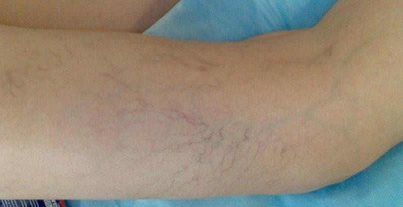 Варикозное расширение вен на ногах при судорогах
