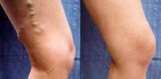 Лечение и симптомы венозной недостаточности