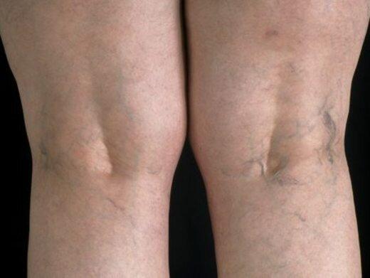 Сильно видны вены на ступнях. Видно вены по всему телу,это болезнь