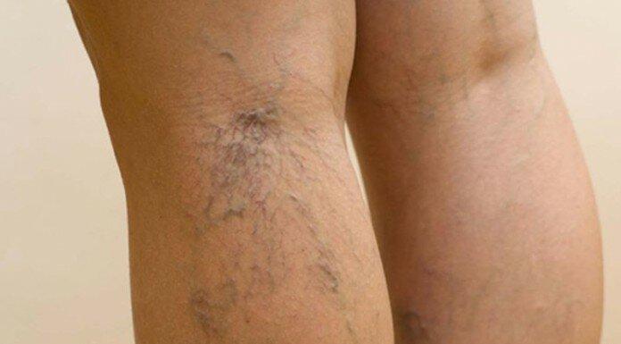 Капиллярная сетка на ногах