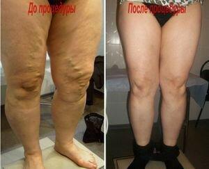 Результат удаления варикозных вен на ногах