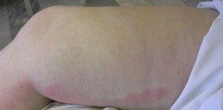 Воспалившиеся вены на ноге