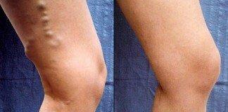 Результат удаления вены на ноге