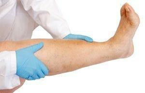 1 - A linfostase das extremidades inferiores causa