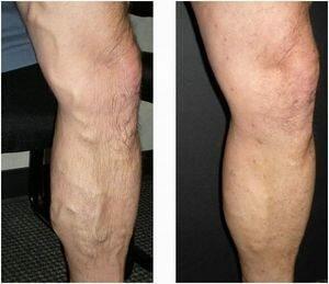 Симптомы варикоза нижних конечностей